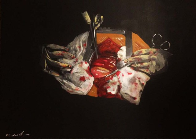 Open Heart Surgery - 18x24 Acrylic on Canvas